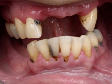 Intra Oral Before Dental Treatment Plan Small