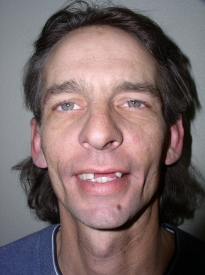 Before Dawson Inspired Dental Treatment Plan Small