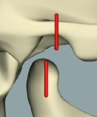 Maximum intercuspation is down and backwards