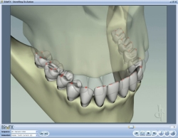 Fig11 Animation Showing All Tooth Contacts