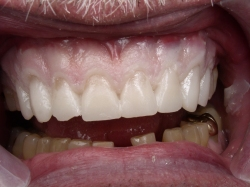 Fig17 Provisionals in the Mouth