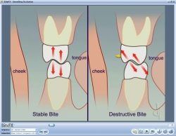 Fig4 Animation Comparing Molar Contacts