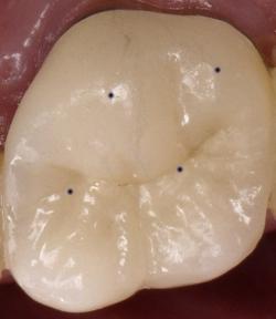 Fig5 Good Molar Contacts