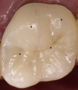 Fig5 Good Molar Contacts