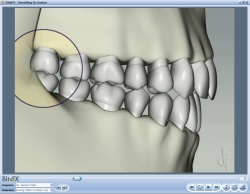 Fig8 Animation Showing Bruxing Effect On Molar