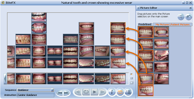 Placing Dental Clinical Pictures