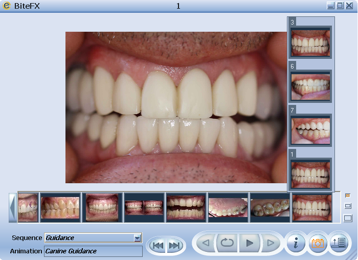 Selecting Dental Clinical Pictures