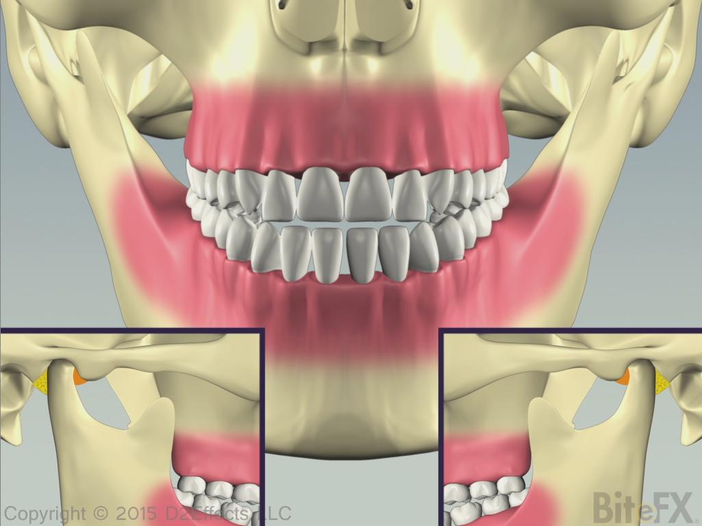 Bilateral-Condyle-Deterioration