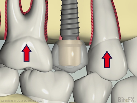 PDL Flex with Implant Animation