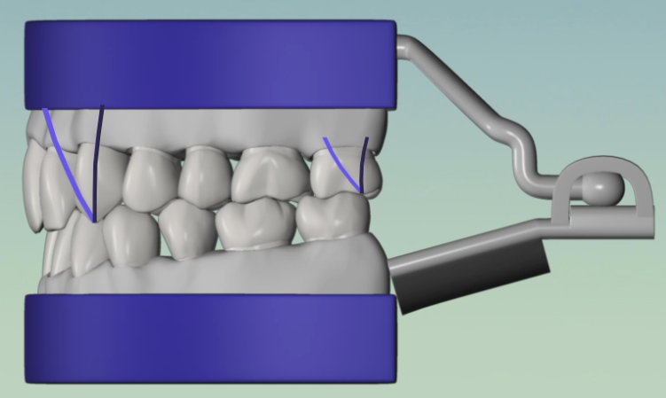 Hinge-Articulator-With-Traces