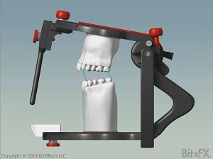 Articulator-Comparison-Denar-300-x-224