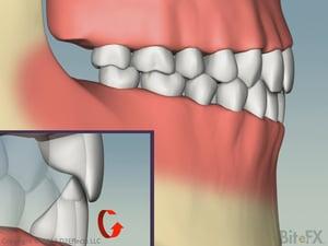ChewingAndEnvelopeOfFunction-Horizontal-Profile-1