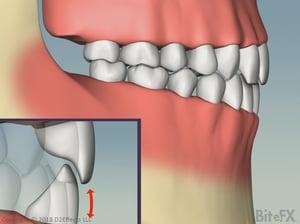 ChewingAndEnvelopeOfFunction-Vertical-Profile-1