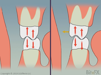 Molars-Contact-Comparions-After-Color-Change-1