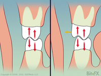 Molars-Contact-Comparions-Before-Color-Change