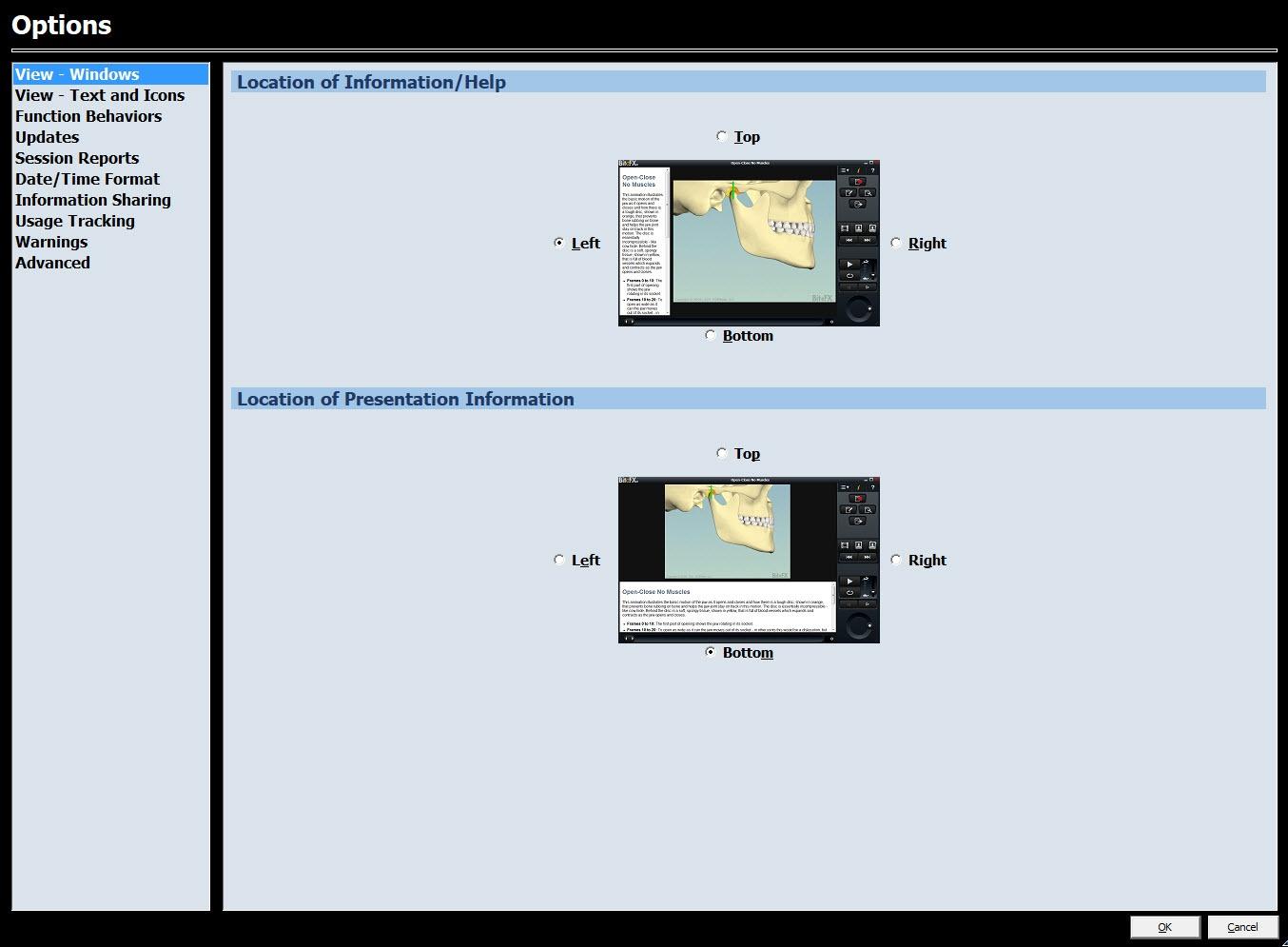 V3 View - Windows #3