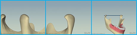 360-Condyle-Rotation-for-Newsletter.png