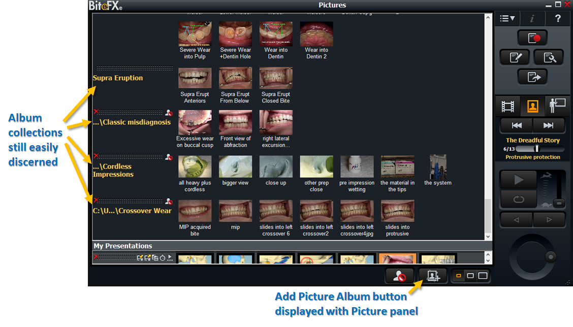 Albums Panel Functionality.png
