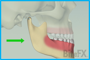 Mandibular-Motions-Protrusion.png