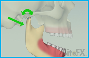 Mandibular-Motions-Rotation-and-Translation.png