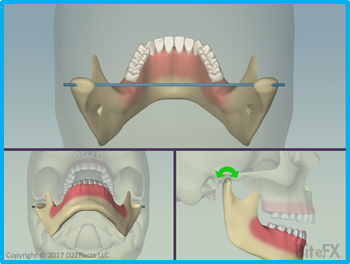 Mandibular-Motions-Three-Views-Rotation.png