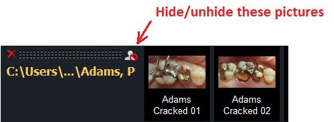 V3 Hide Button